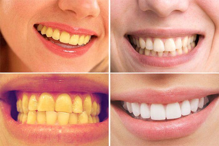 Kết quả hình ảnh cho Propolinse Dental Whitening 600ml